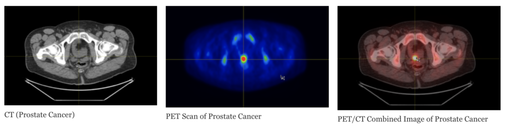 CT, PET, and PET/CT side by side. (Prostate Cancer)